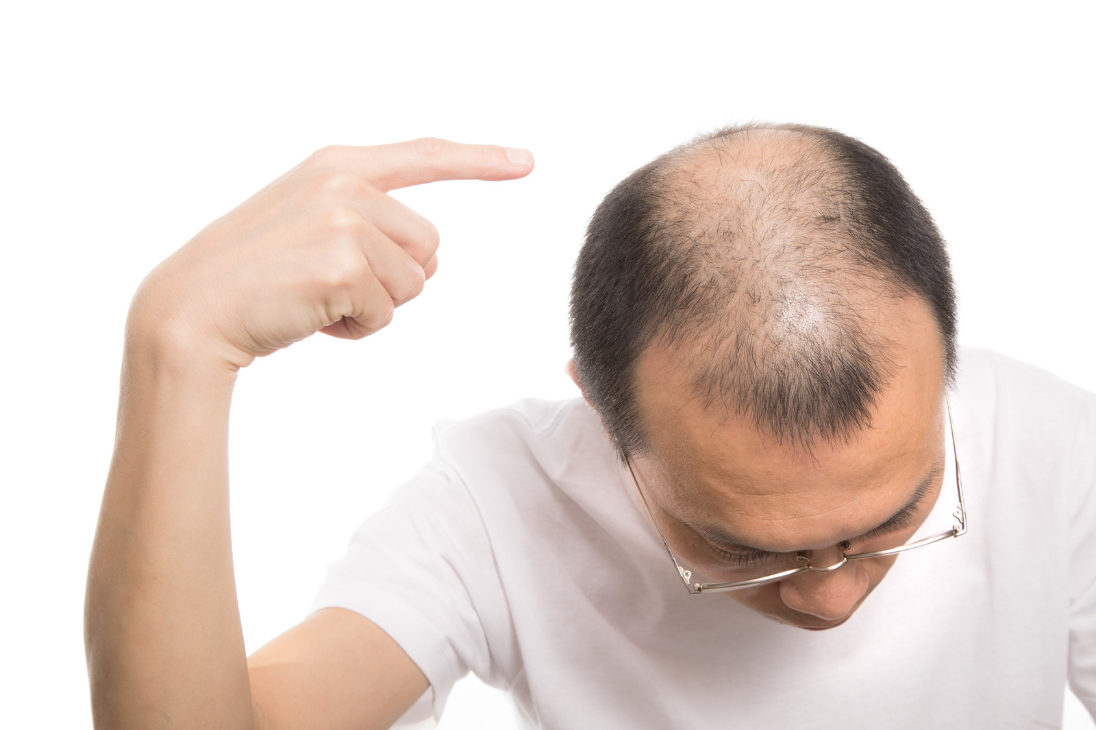男の頭頂部てっぺん薄毛に専用育毛剤「MSTT1」